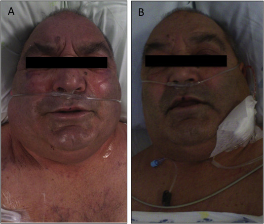 before and after superior vena cava syndrome treated by